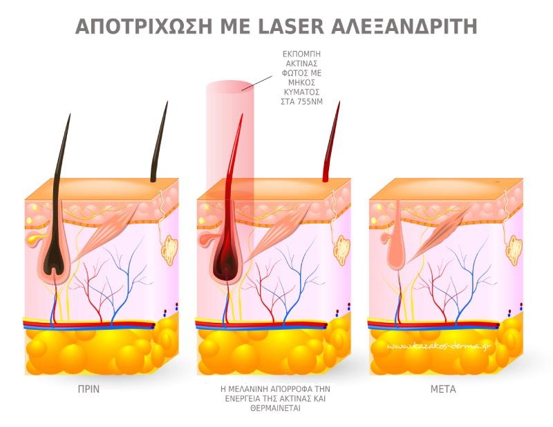 αποτρίχωση, laser Αλεξανδρίτη, kazakos dermatologist, kazakos dermatologos, καλοσ δερματολογοσ αθηνα, καζακοσ δερματολογοσ dermalab, καζακοσ δερματολογοσ, δερματολογοσ κολωνακι, δερματολογοσ συνταγμα, Δερματολογικο κεντρο κολωνακι, οι καλυτεροι δερματολογοι στην αθηνα, καζακος χαρης, δερματολογοσ μετροπολιταν,