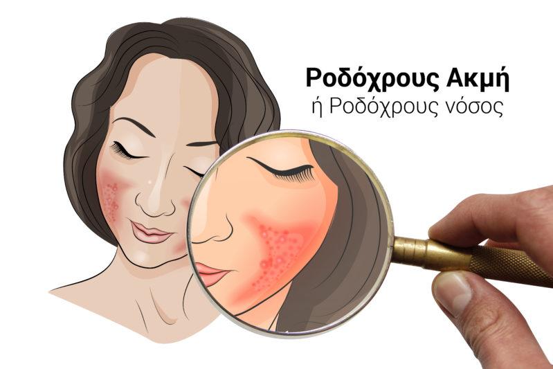rosacea icd 10, L71, ροδοχρους ακμή, ροδοχρους νοσος, laser, ακμή, κοκκινιλα στο προσωπο