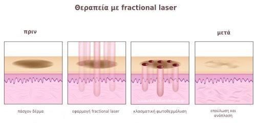 ανάπλαση προσώπου, λέιζερ, fractional, laser