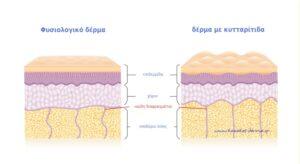 lpg, κυτταριτιδα, kazakos dermatologist, kazakos dermatologos, καλοσ δερματολογοσ αθηνα, καζακοσ δερματολογοσ dermalab, καζακοσ δερματολογοσ, δερματολογοσ κολωνακι, δερματολογοσ συνταγμα, Δερματολογικο κεντρο κολωνακι, οι καλυτεροι δερματολογοι στην αθηνα, καζακος χαρης, δερματολογοσ μετροπολιταν,