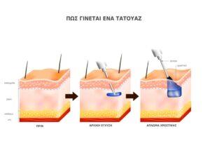 τατουαζ κινδυνοι, τατουάζ, tattoo, laser, kazakos dermatologist, kazakos dermatologos, καλοσ δερματολογοσ αθηνα, καζακοσ δερματολογοσ dermalab, καζακοσ δερματολογοσ, δερματολογοσ κολωνακι, δερματολογοσ συνταγμα, Δερματολογικο κεντρο κολωνακι, οι καλυτεροι δερματολογοι στην αθηνα, καζακος χαρης, δερματολογοσ μετροπολιταν,
