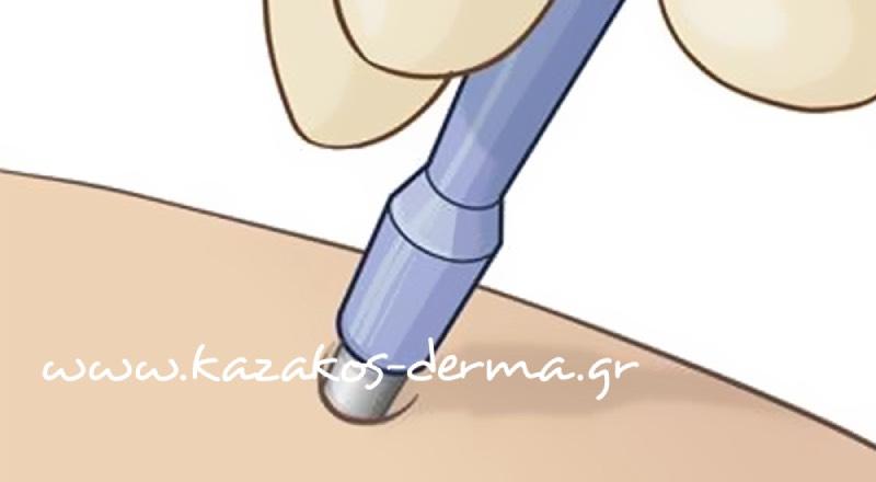 βιοψία δέρματος, δερματολογος