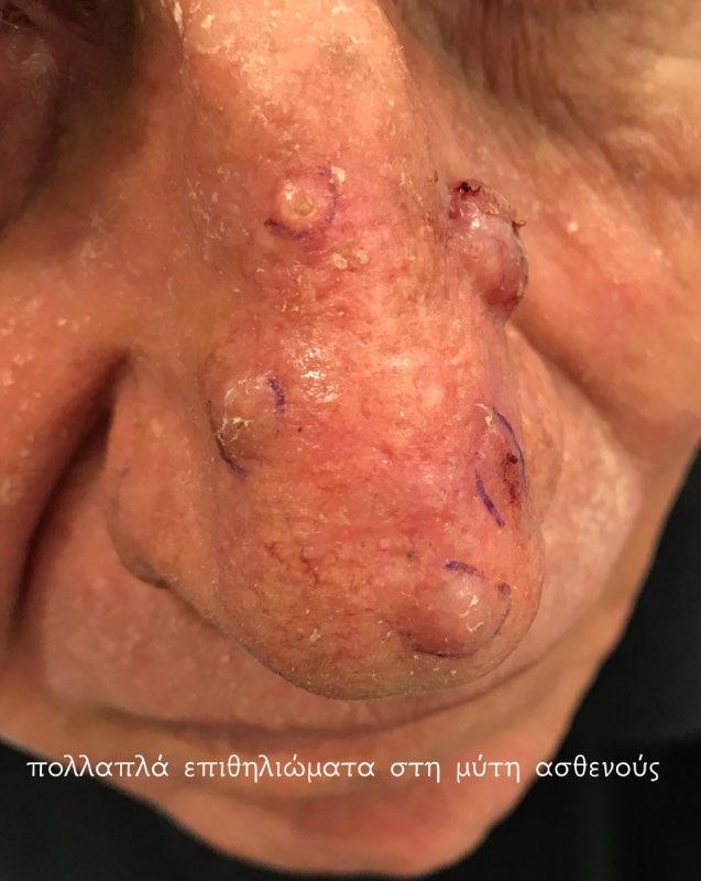 επιθηλίωμα, δερματικός καρκίνος, βασικοκυτταρικό καρκίνωμα