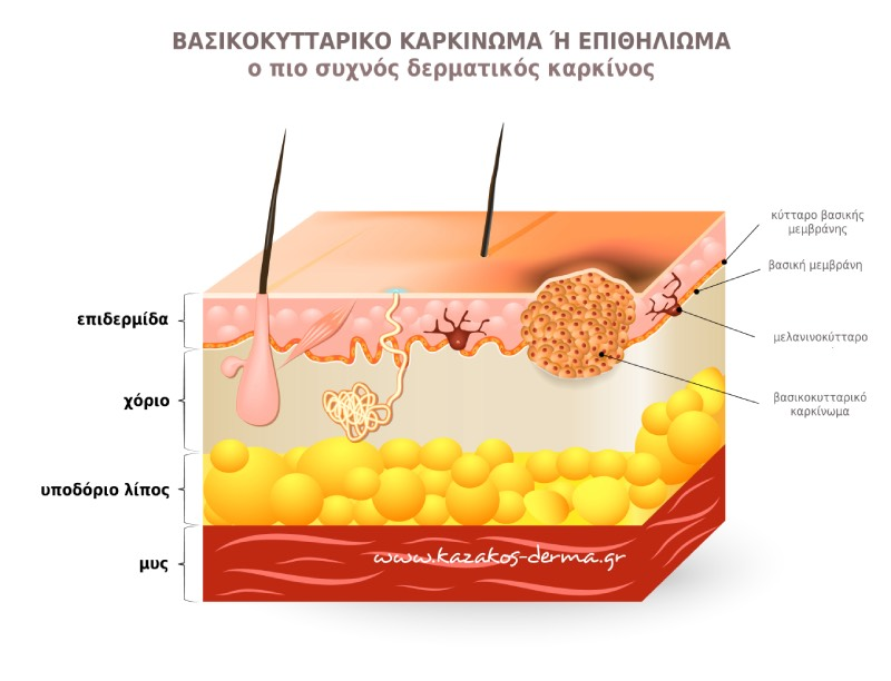 βασικοκκυταρικό καρκίνωμα, επιθηλίωμα, δερματικός καρκίνος, kazakos dermatologist, kazakos dermatologos, καλοσ δερματολογοσ αθηνα, καζακοσ δερματολογοσ dermalab, καζακοσ δερματολογοσ, δερματολογοσ κολωνακι, δερματολογοσ συνταγμα, Δερματολογικο κεντρο κολωνακι, οι καλυτεροι δερματολογοι στην αθηνα, καζακος χαρης, δερματολογοσ μετροπολιταν,